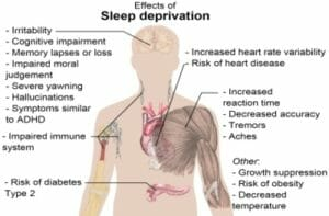 sleep_deprivation