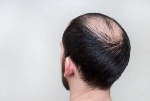 He Shou Wu for Hair Loss, Hair Growth and Gray Hair